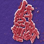 Ebola Virus (Photo: Courtesy Frederick Murphy)